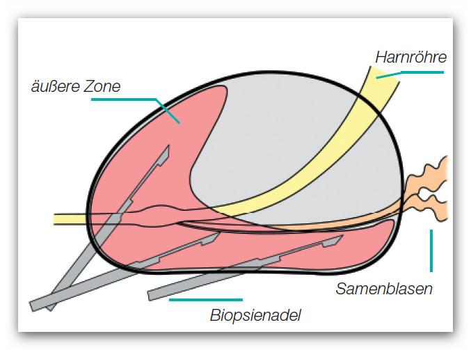 gewebeprobe prostata entnehmen