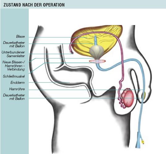 nachsorge nach prostata op