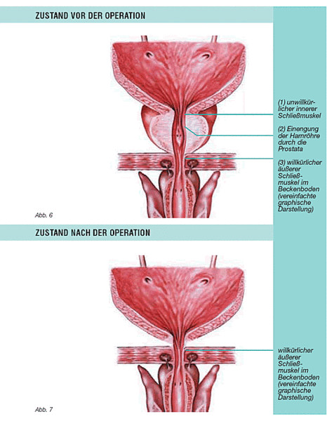 Radikale Prostatektomie und sexuelle Dysfunktion