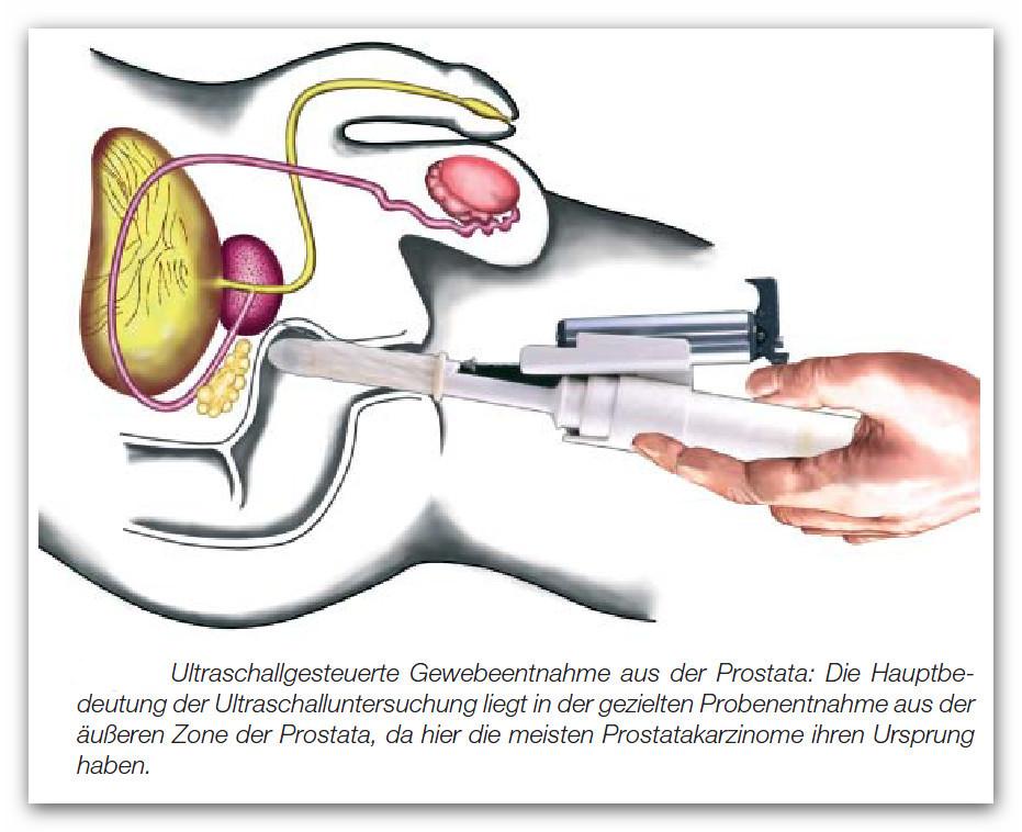 Biopsie - Prostatakrebs Selbsthilfe Saar